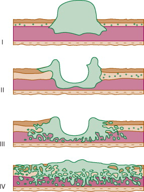 bacterie waarde in bloed foot wart alternative treatment