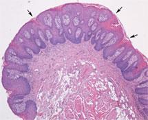 Tongue papilloma pathology, Squamous papilloma tongue pathology outlines.