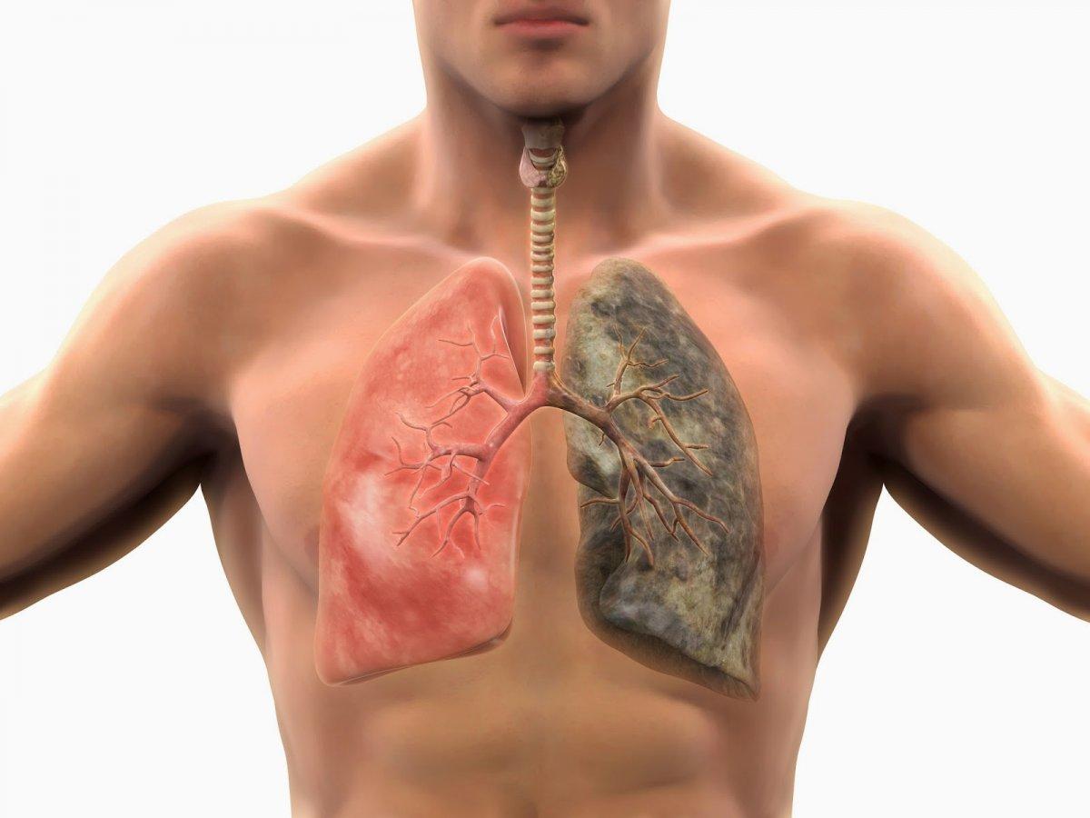 Dr. Laura Cardoș: 90% din cancerele pulmonare sunt cauzate de fumat