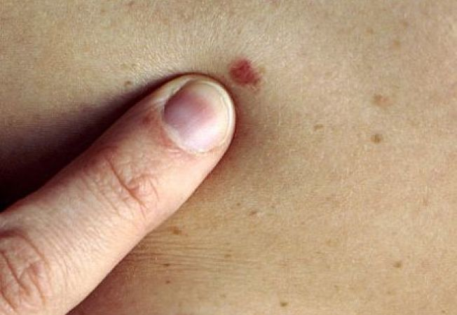 virus del papiloma humano que es y como se transmite cancer la san metastaza tratament