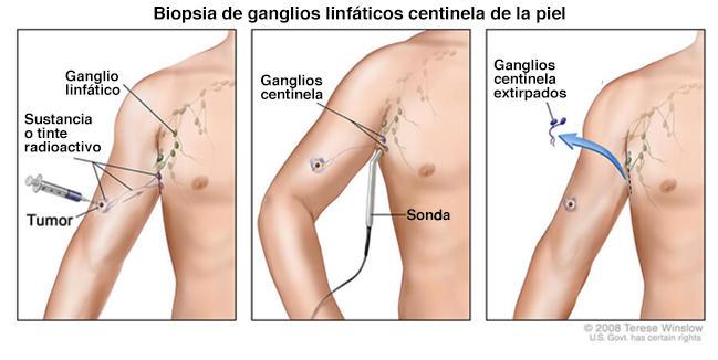 cancerul ganglionar