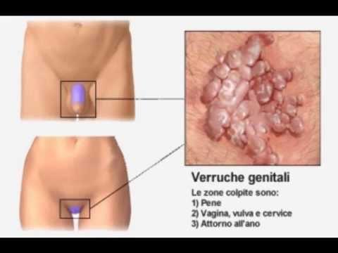 papilloma condilomi acuminati cancer gastric rata de supravietuire