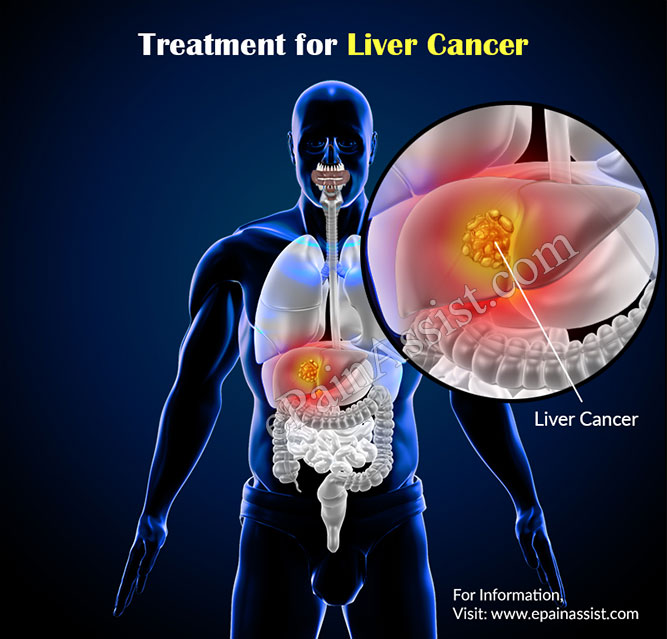 hepatic cancer adalah