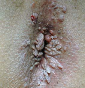 cancer de prostata faza incipienta abdominal cancer surgery