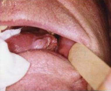 squamous papilloma tip of tongue