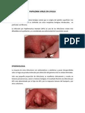 papiloma em uvula hay papiloma benigno