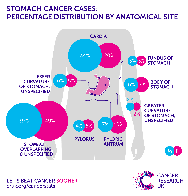 gastric cancer frequency paraziti v tele obrazky