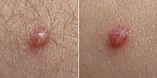 hpv chez lhomme symptomes cancer faringe causa