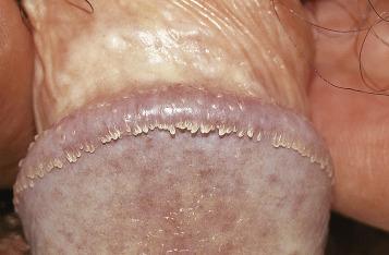 condyloma acuminata hand hpv eye symptoms