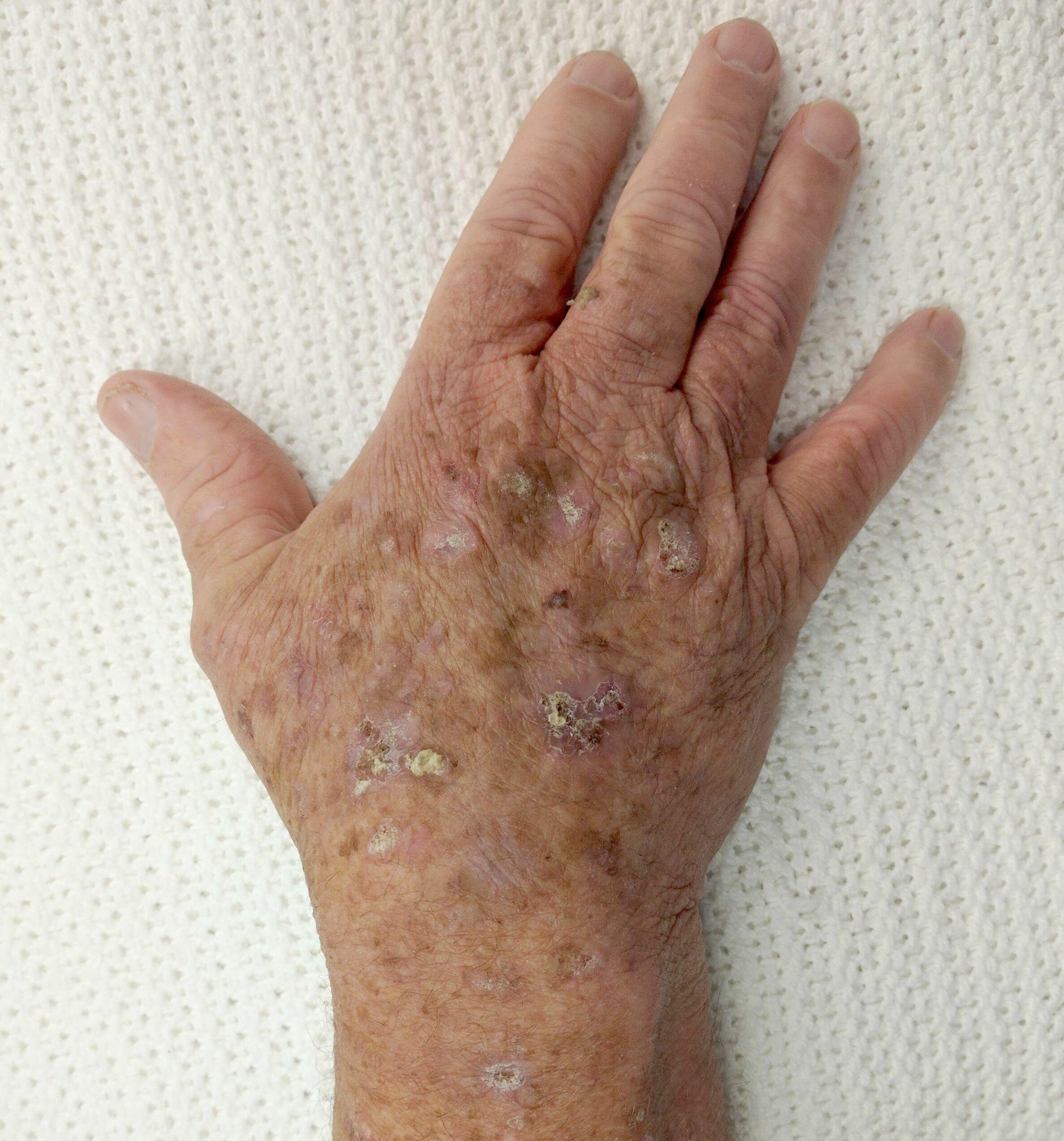 Herpes simplex de tip 1 - Papiloma