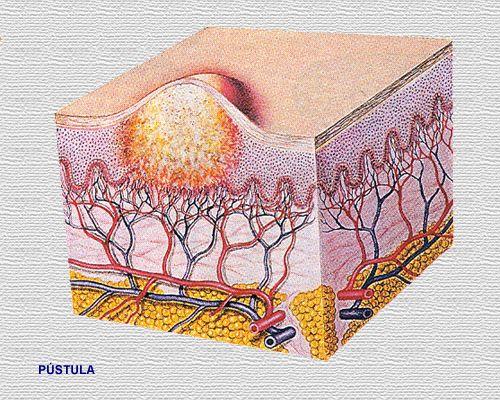 condyloma acuminata tratament