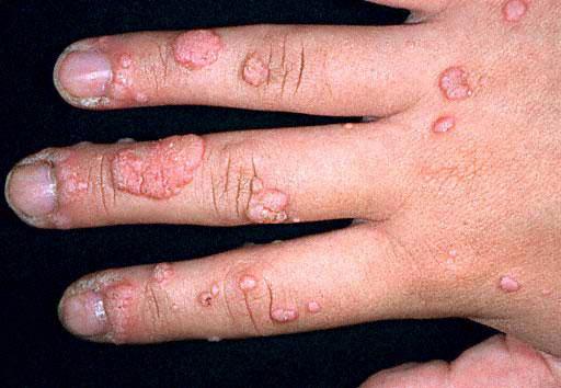 warts hand treatment