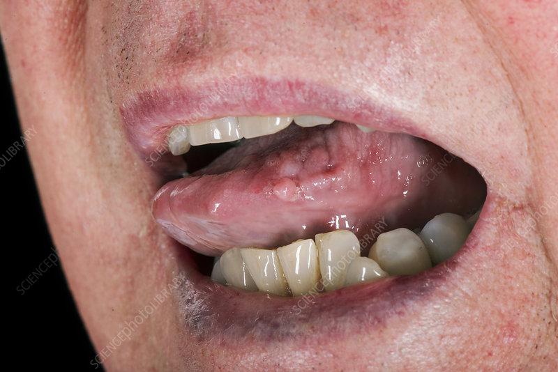 cancer bucal prezi virus del papiloma humano caracteristicas y sintomas