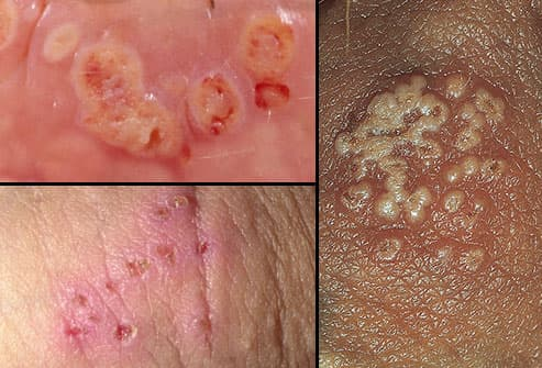hpv and genital sores