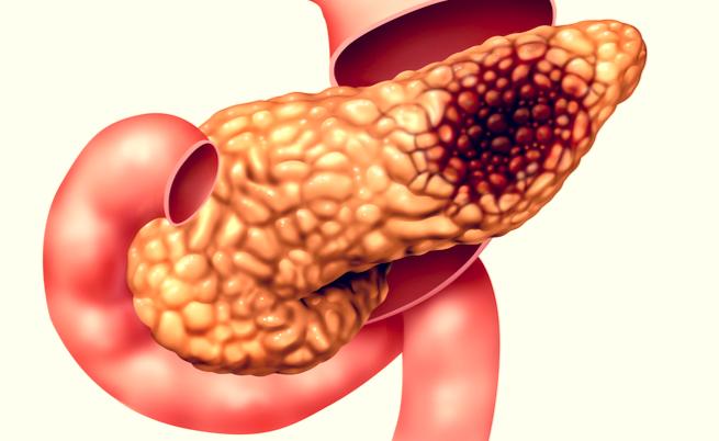 cancer pancreas genetico