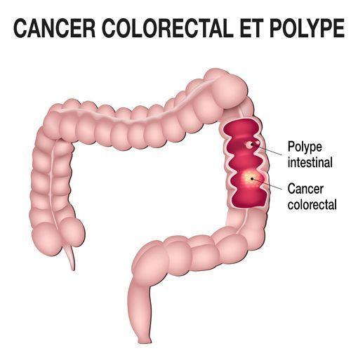 cancer colorectal douleur dos sintomi di papilloma virus nelluomo