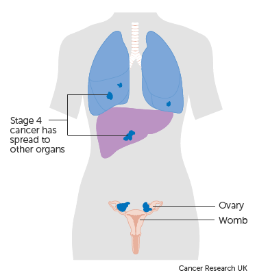 [Expression of CA in ovarian cancer].