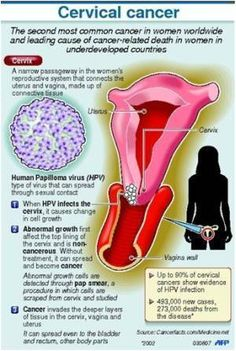 human papillomavirus and ovarian cancer hpv gardasil adalah