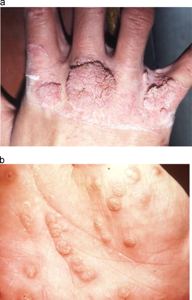 papillomavirus infection skin autoinfection in enterobiasis