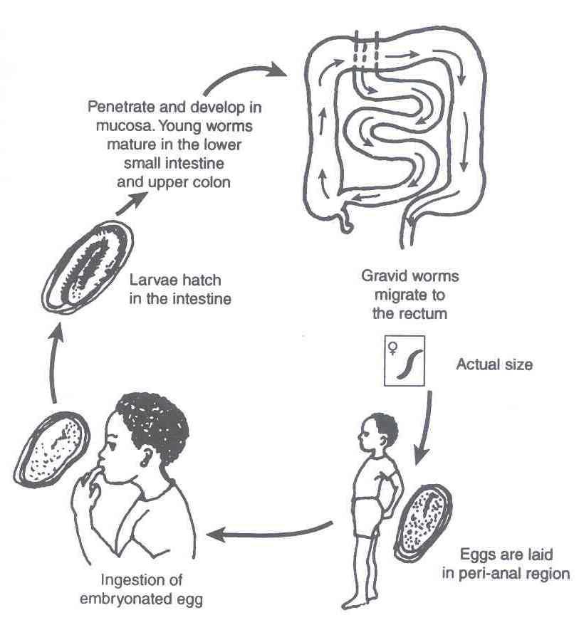 hpv wart pain enterobius vermicularis oms