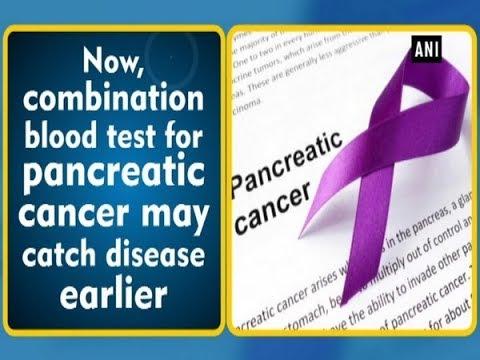 pancreatic cancer blood test cancer de san cu metastaze hepatice
