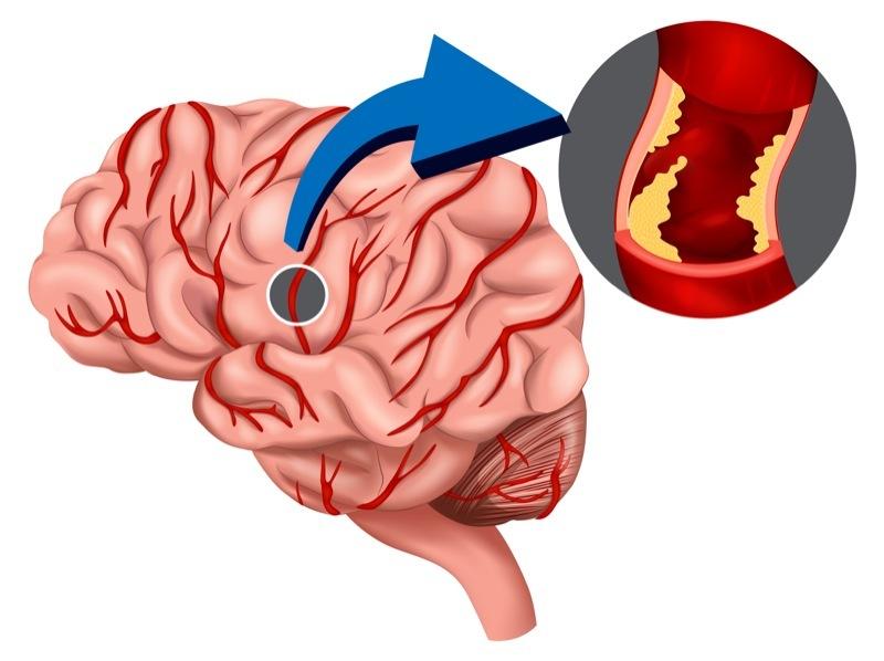 sintomas de cancer de utero hpv cervical cancer on the news