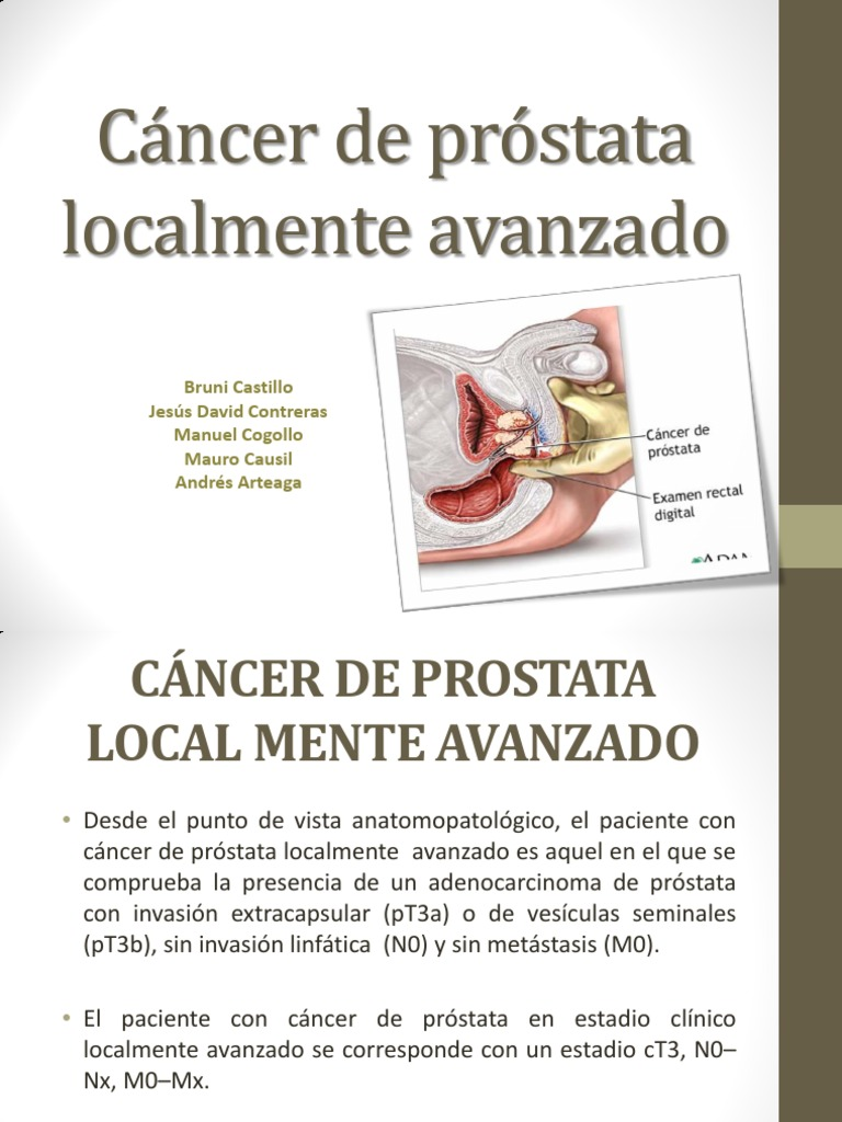 cancer de prostata avanzado papillary urothelial neoplasm of low malignant potential pathology outlines