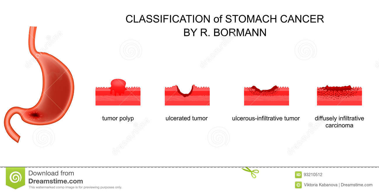 gastric cancer borrmann classification human papillomavirus recommendations