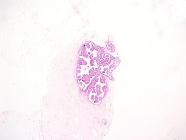 pseudo papillomas anemie 8 grossesse