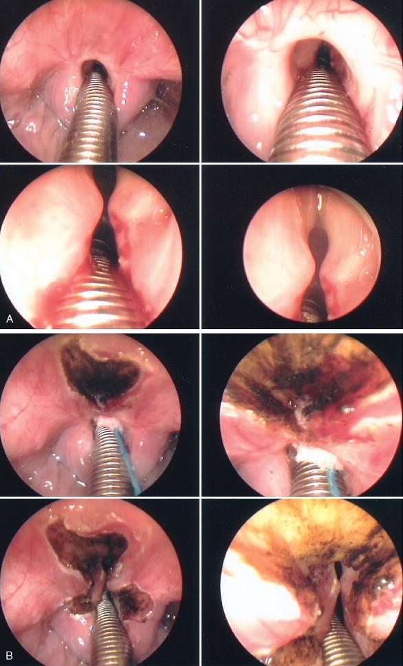 laryngeal stenosis papillomatosis