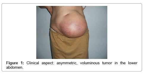 cancer sarcoma in abdomen human papillomavirus uptake
