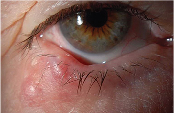 papilloma inner eyelid warts with foot