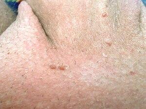 papiloma genital masculino sintomas cancer bacterian copaci