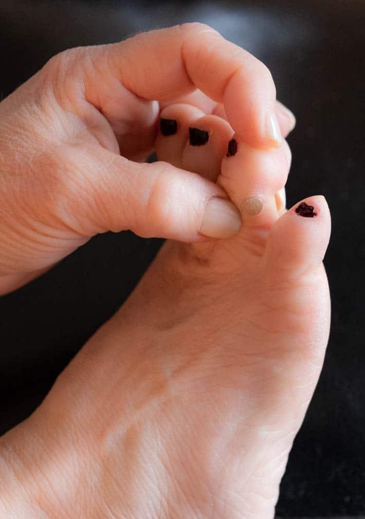 wart foot plantar cancer hodgkin sistema linfatico