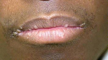 hpv skin lips papiloma virus por pcr positivo