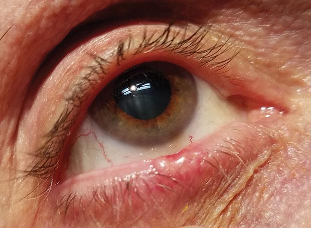 papilloma eyelid margin helminthic drugs