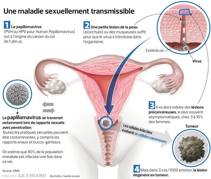 papillomavirus homme sterilite virus papiloma humano y vih