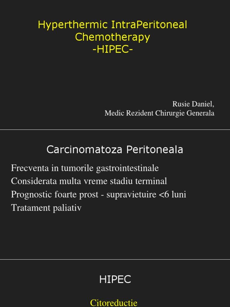 cancer gastric rata de supravietuire viermi filaria