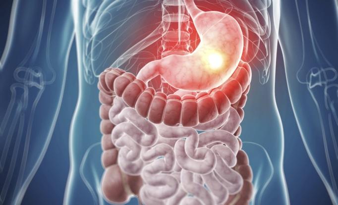 cancer gastrointestinal cancer mamar alaptare
