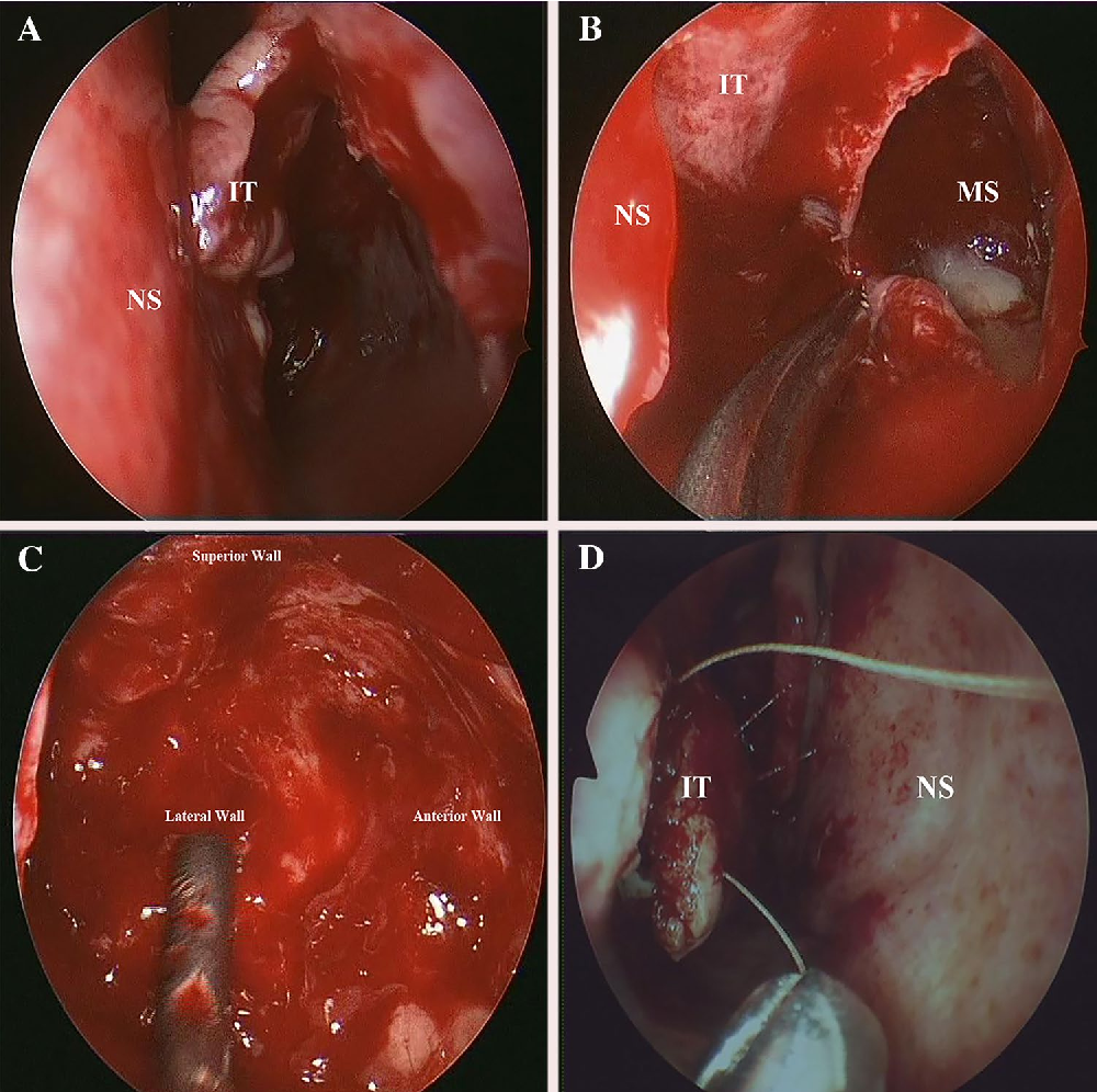inverted papilloma in the nasal
