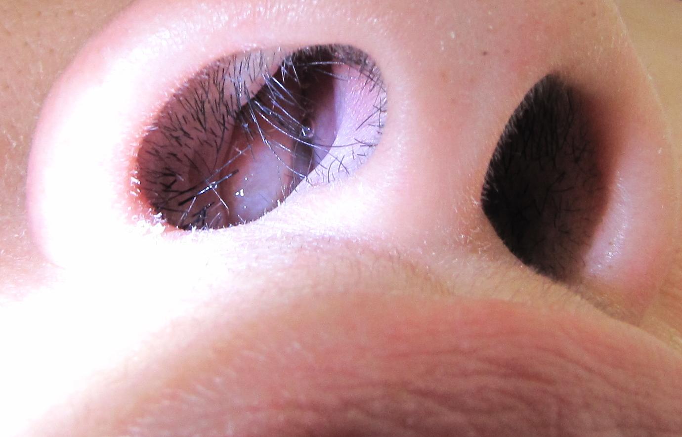 papilloma nose icd 10 cancer de piele la fata
