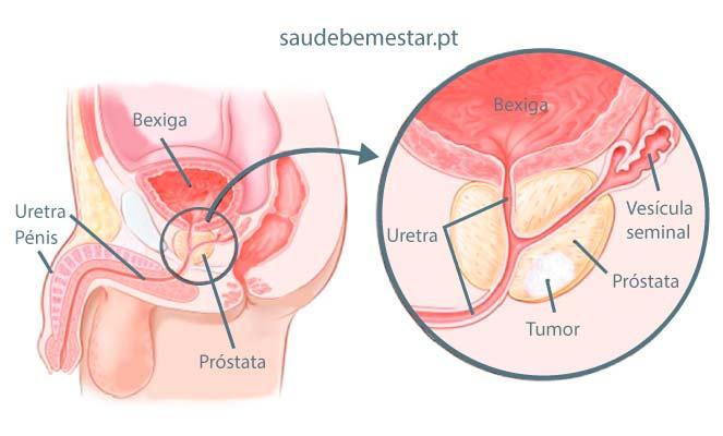 cancer neoplasia maligno tem cura