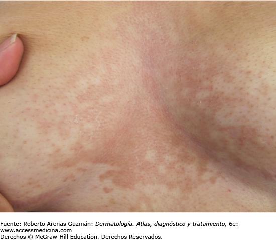 papilloma pharyngeal neuroendocrine cancer thymus