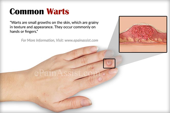 warts on hands in pregnancy