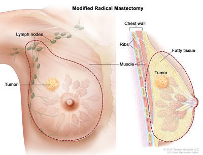 recovery from breast papilloma surgery
