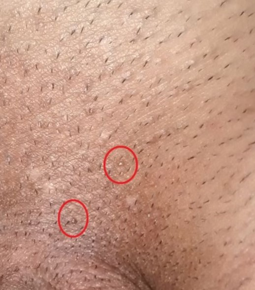 human papillomavirus types anogenital warts uterine cancer nccn