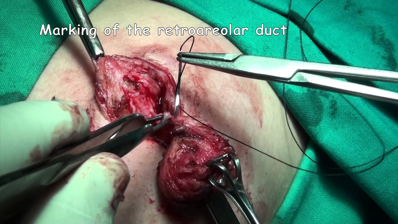 intraductal papillomas removal papillon zeugma relaxury tripadvisor