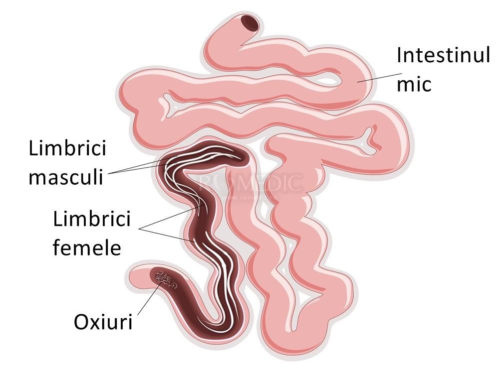 tratament oxiuri copii sub  an cancer of uterine symptoms