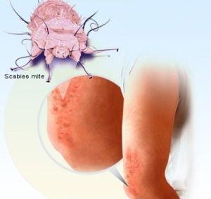 positive high risk human papillomavirus papilloma rul icd 10