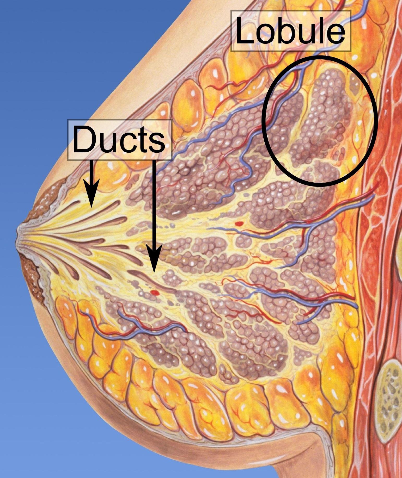 papilloma intraductal mammae